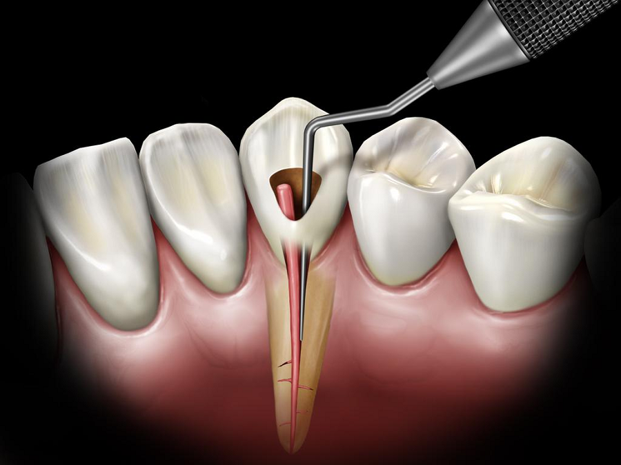 Dental Root Canal Treatment Will Prolong The Life Of Your Tooth!